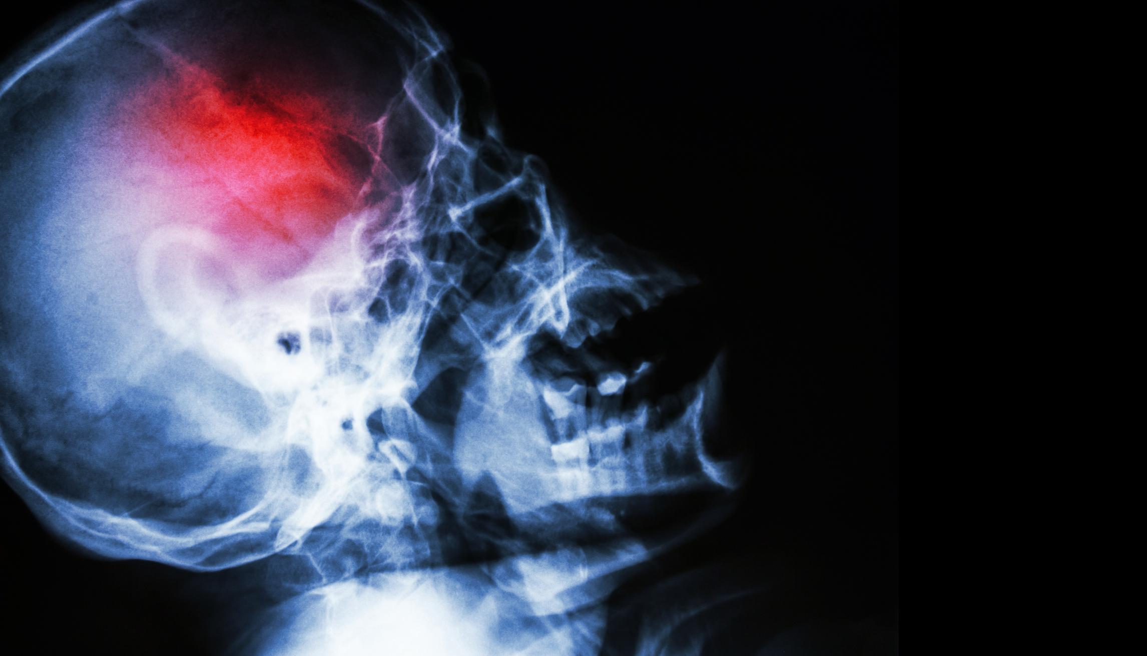 látássérült zsibbadás fenntartó gyógyszerek a látáshoz