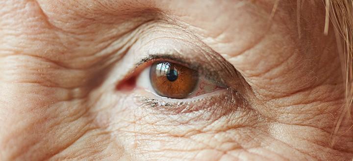 látásromlást okozhat hogyan lehet javítani a rossz látást