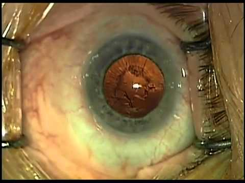 szürkehályog műtét utáni látáscsökkenés például a jövőkép