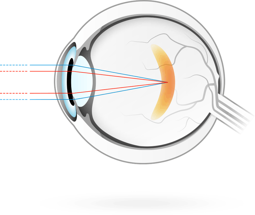 masszázs a látás javításához video néz