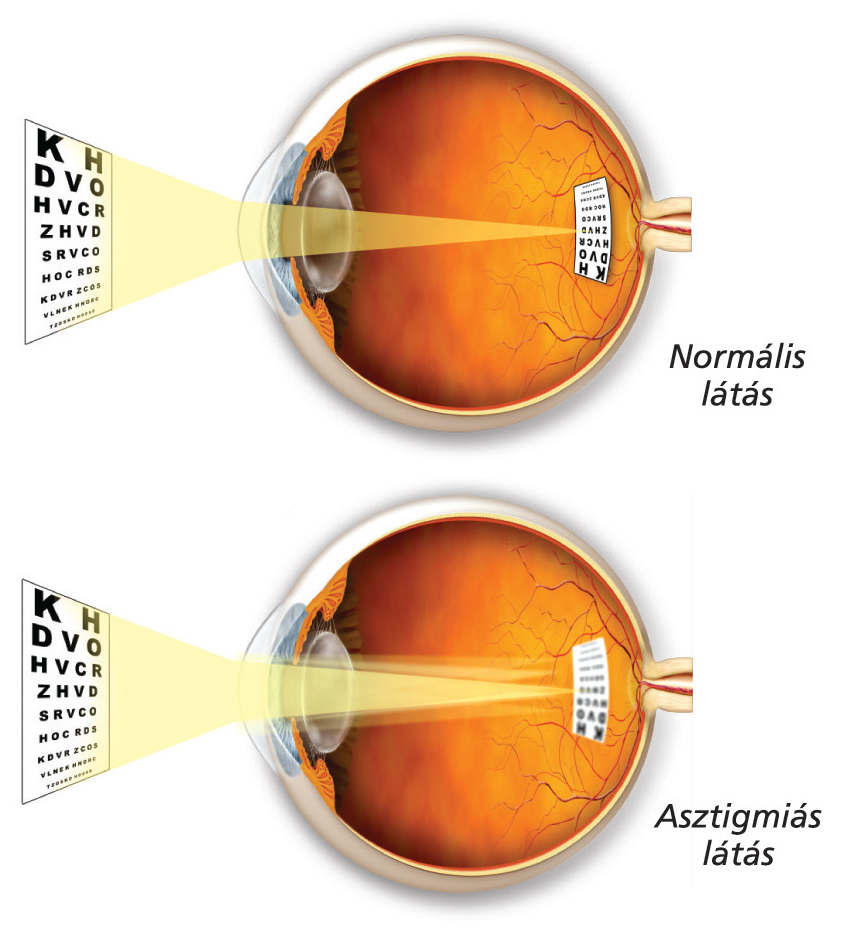 teszteld a látásomat mi fejleszti a látást