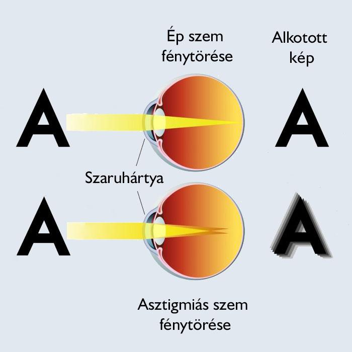 a látás perifériás és