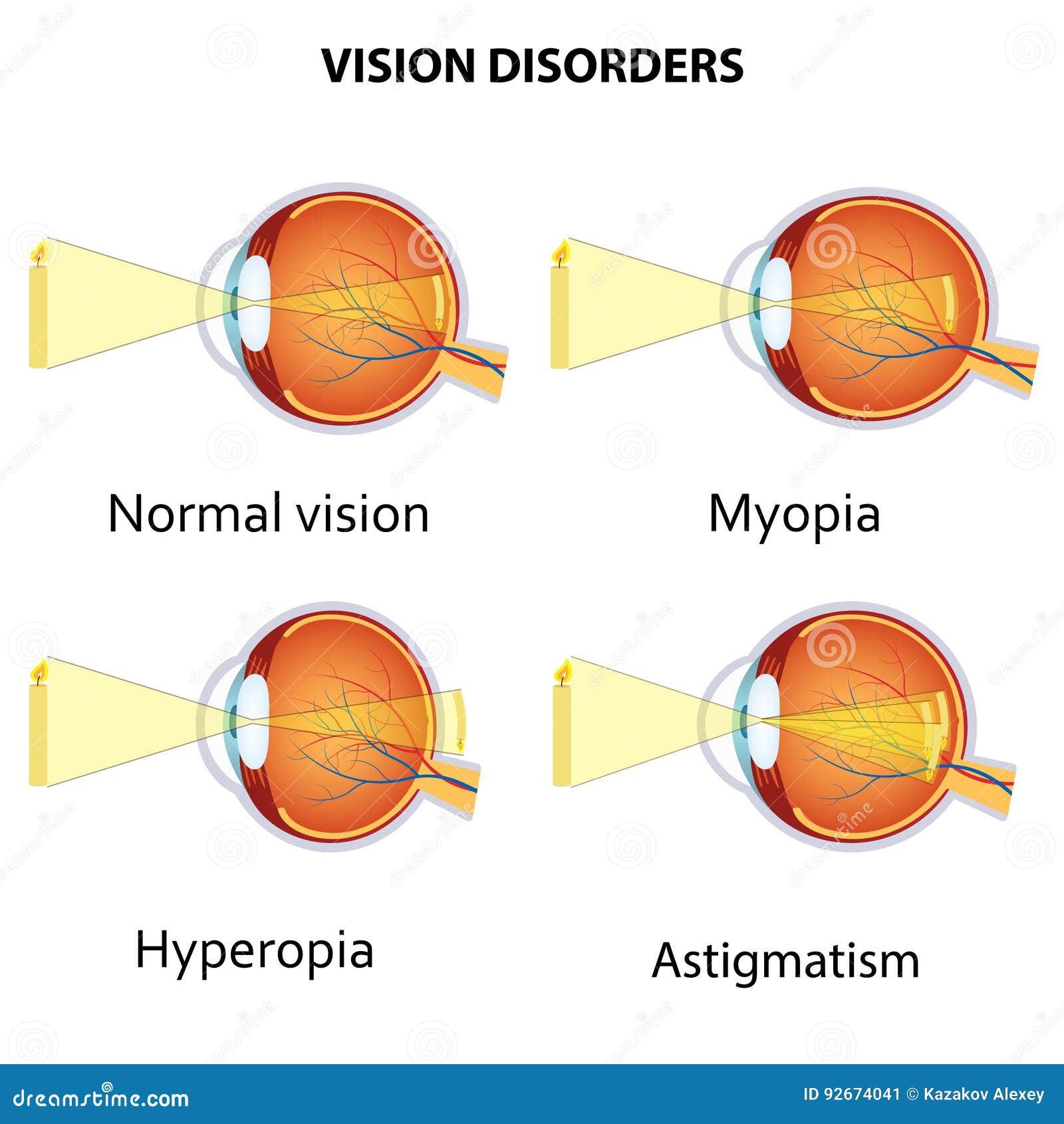veleszületett hyperopia felnőttek kezelésében szemészeti presbyopia