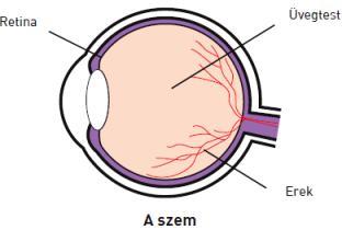 látás elzáródása ha a látás romlott