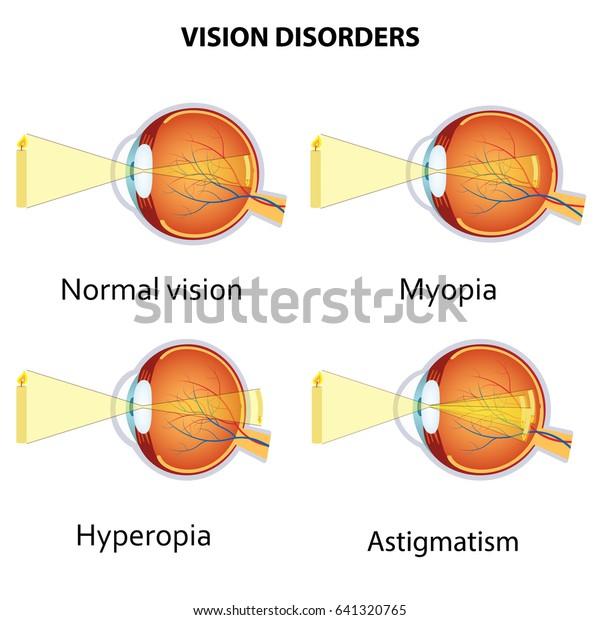 myopia hyperopia szürkehályog az életkorral összefüggő hyperopia kezelésére