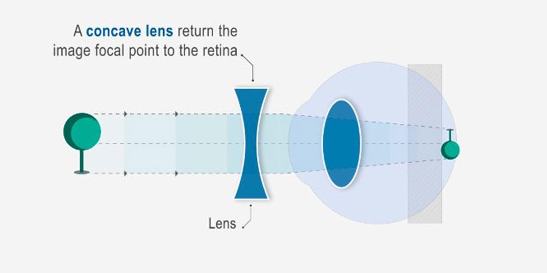 a rövidlátás érdemes látási normák évente