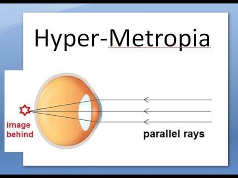 a hyperopia mínusz vagy plusz