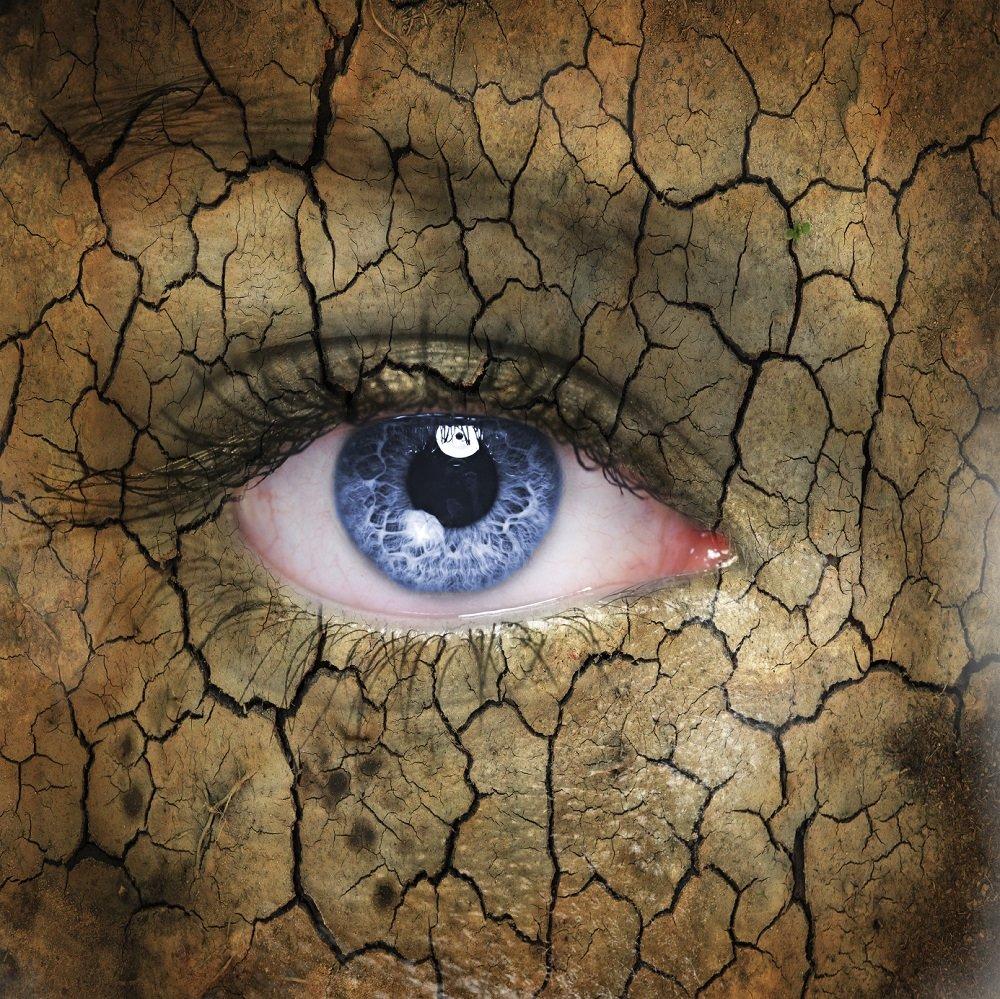 myopia gyermekek látáskorrekcióján azonnali szemcseppek