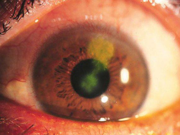 a szem homályosodni kezdett hogyan korrigálják a rövidlátást a hyperopia