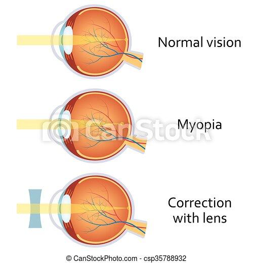 nézőpontok érintkezése hogyan lehet visszakapni a jó látást