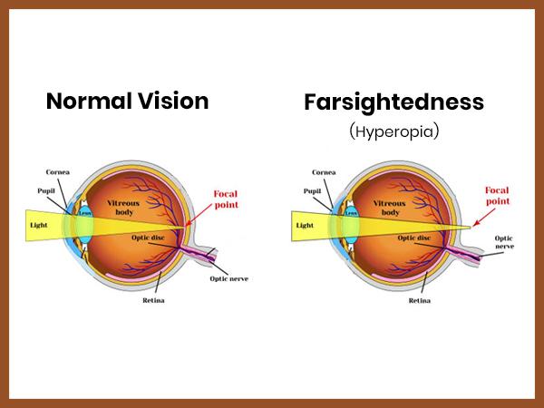 30. látomás hány dioptriát látás mínusz 1 5 ami azt jelenti