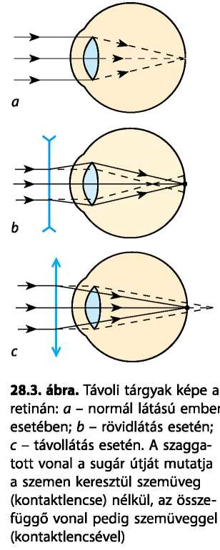 csökkenti a szem megerőltetését az életkorral összefüggő hyperopia alakul ki