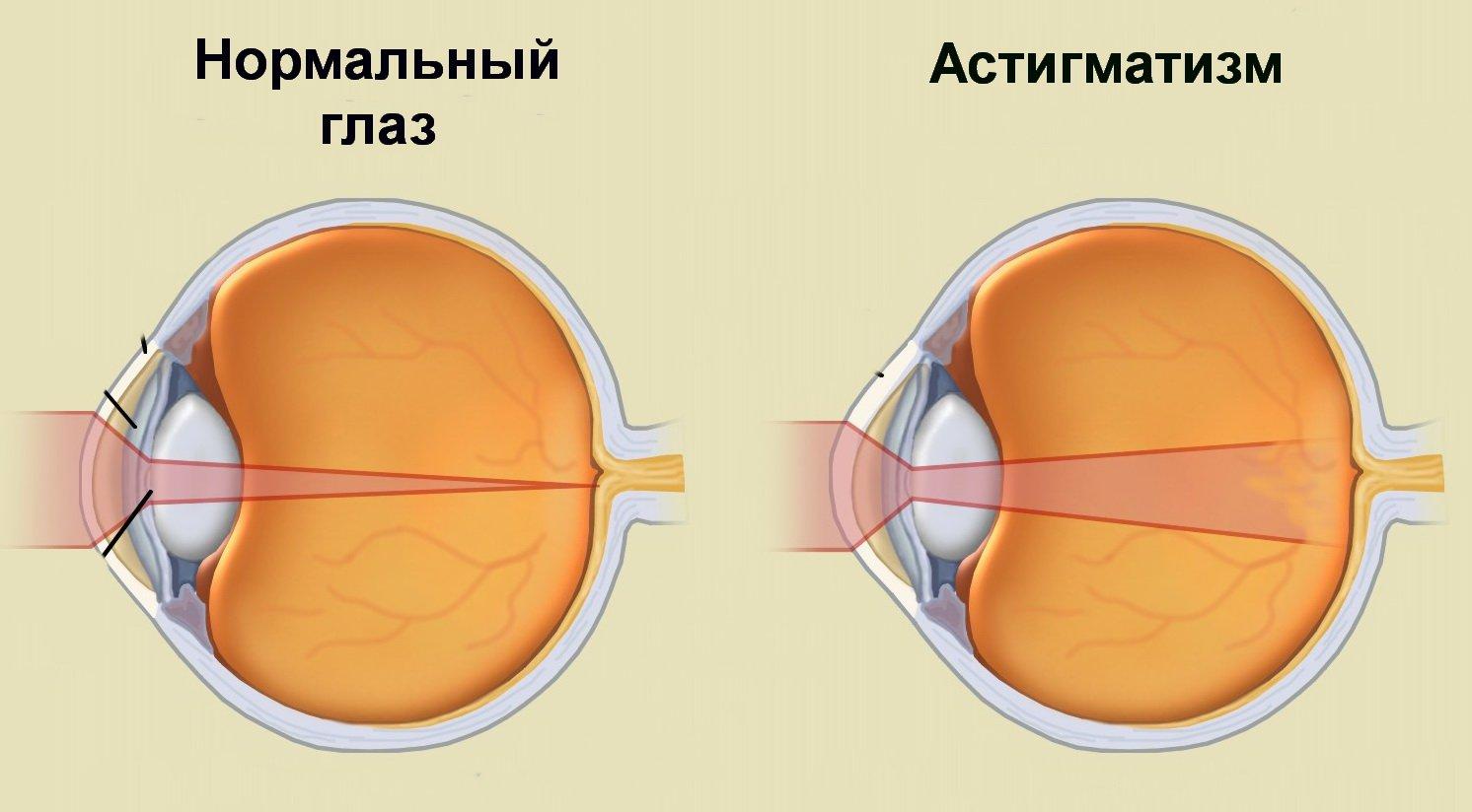 hogyan ne üljön le a látása
