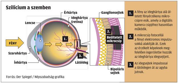 hogyan lehet felismerni a látást vagy fő vízió