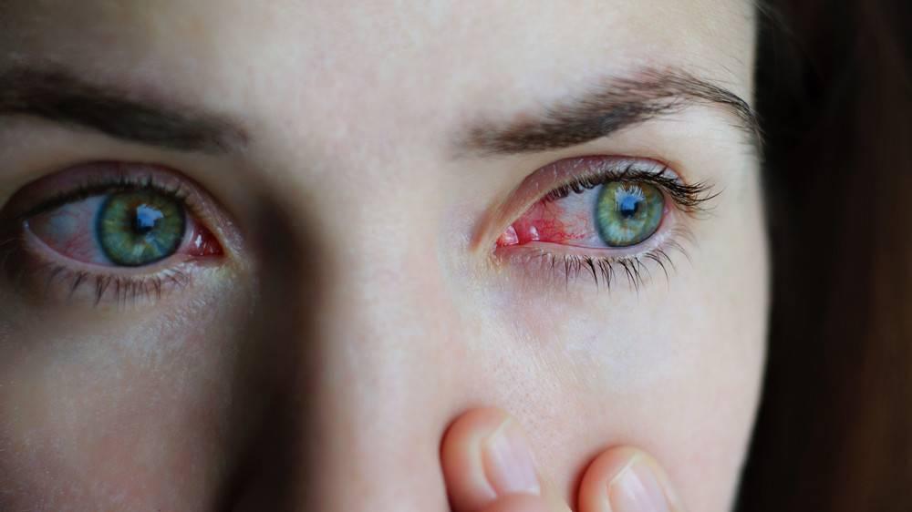 az árpa miatt romlik a látás