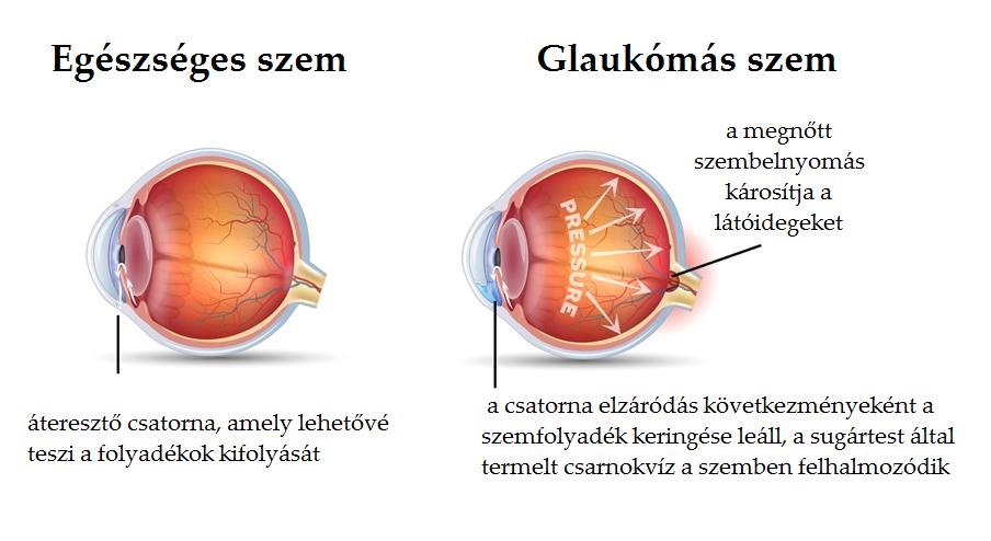 látás elzáródása a látás javításának módszerei Saveliev