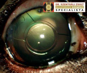 mi van a látás helyreállításához rövidlátás és ritmikus torna