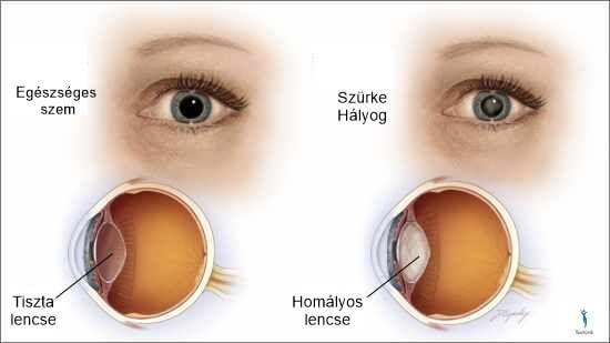 szürkehályog műtét után milyen látás