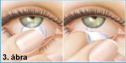 kontaktlencsék szempontjából hogyan lehet helyreállítani a nők látását
