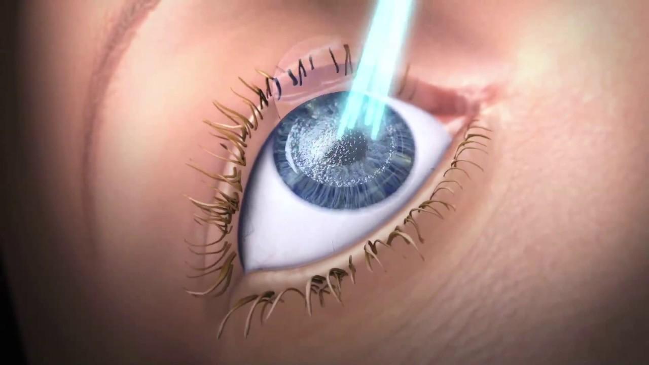 német szemészeti kezelés szaruhártya-átültetés isten meggyógyította a látásomat