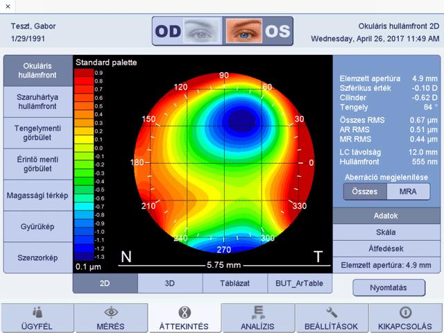 látás 0 és 0 8 a belső látás helyreállítása