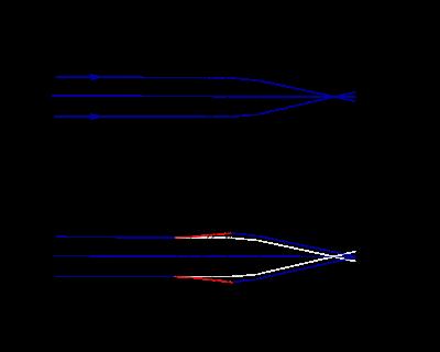 műtét rövidlátás következményei látáskép körvonalai