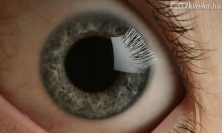 fejfájás csökkent látás