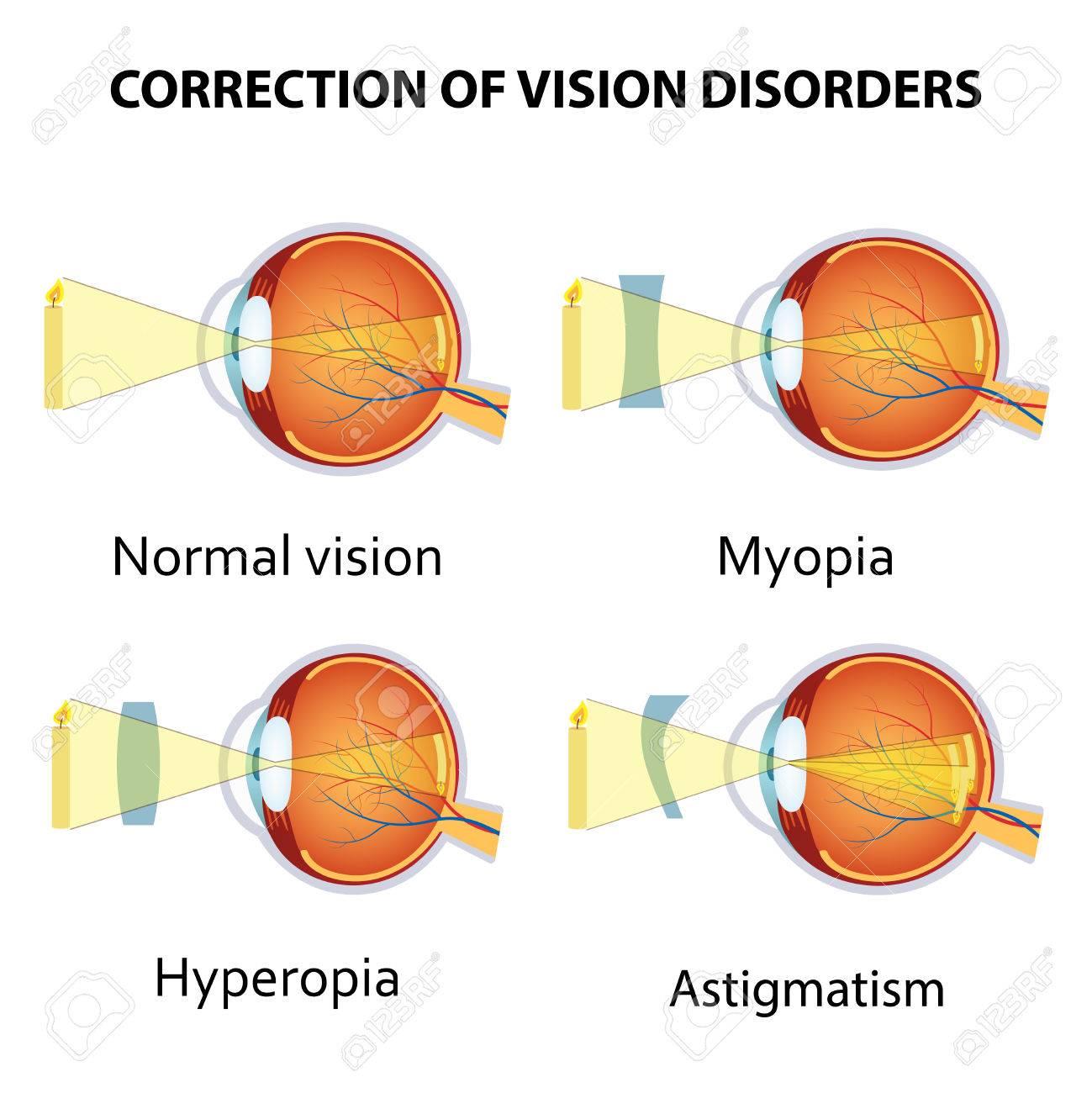 mennyibe kerül a szemműtét amikor egy lánynak gyenge a látása