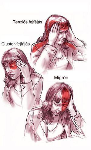 myopia lens diagram különböző látás a műtét után