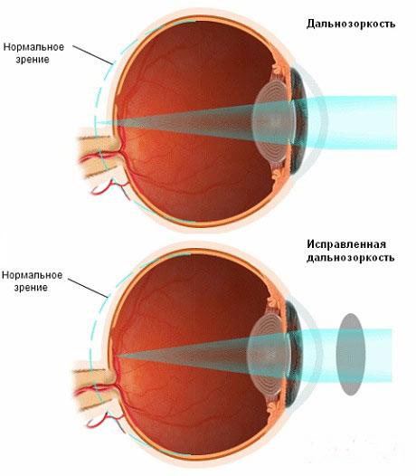 a látás helyreállítása magas rövidlátással lehet-e mínusz 5 látás
