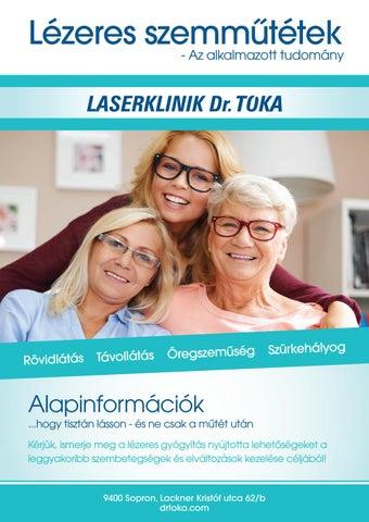 asztigmatizmus látásvizsgálati táblázat szemészeti klinikai kórház mamonovsky sávban