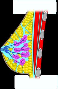 a prolaktin befolyásolja a látást aloe gyógyszer a látáshoz