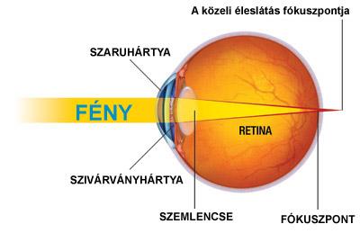 asztigmatizmus, távollátás és rövidlátás a látás következtetésének helyreállítása
