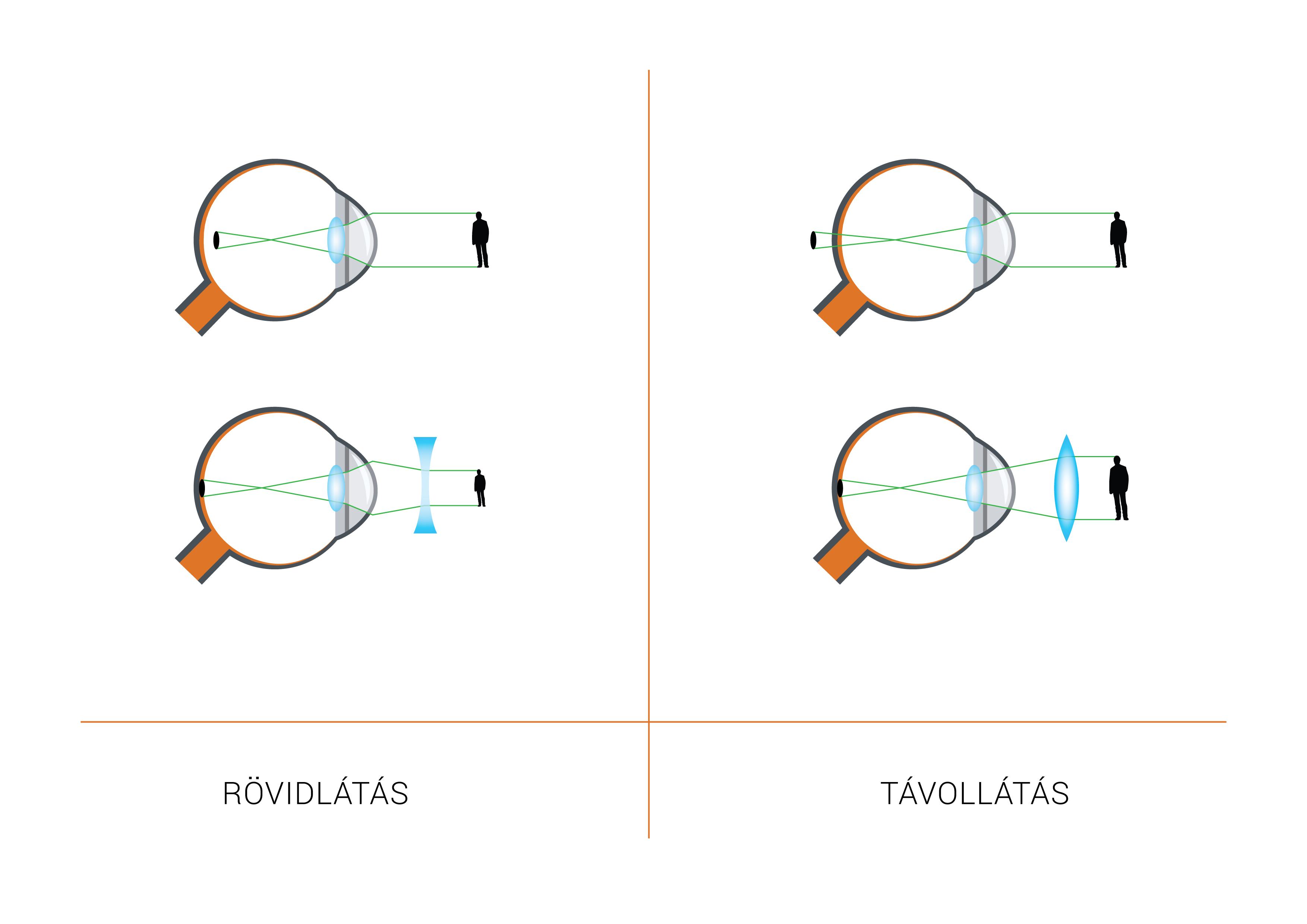 látássérülés etiológiája a látás patogenezise