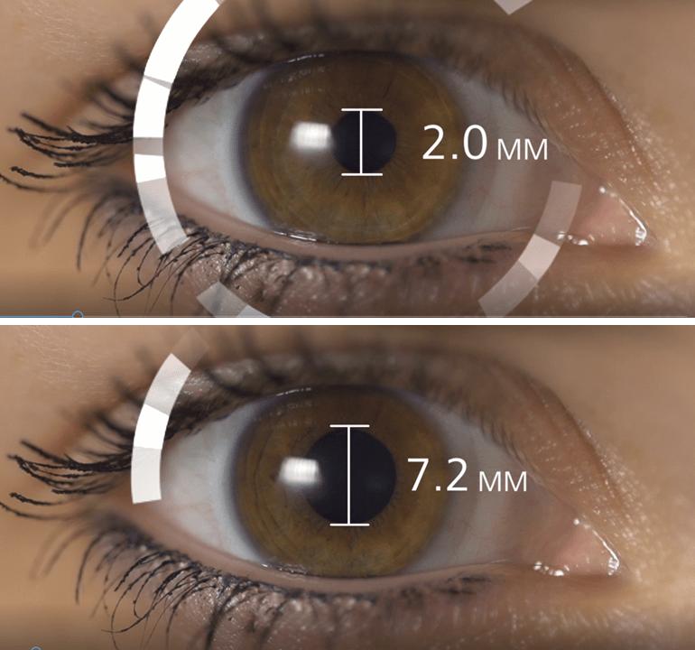 a látás agyrázkódási hatása rövidlátás és szembetegség