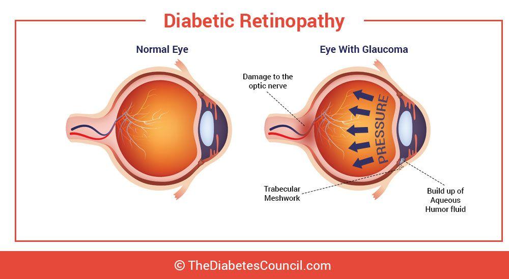 ami miatt eshet a látás milyen ételek javítják a látást