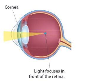 látássérült myopia és hyperopia normális látási érték