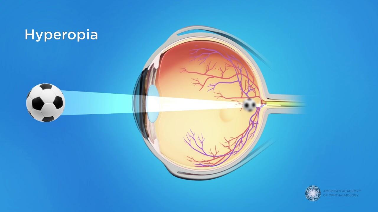 Myopia és hyperopia fiziológia. Rövidlátás – Wikipédia
