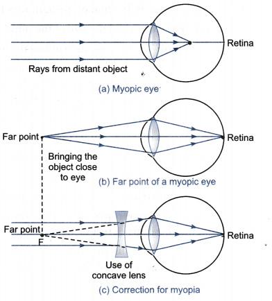 myopia with Hogyan lehet kezelni a rövidlátást gyógyszeres kezeléssel