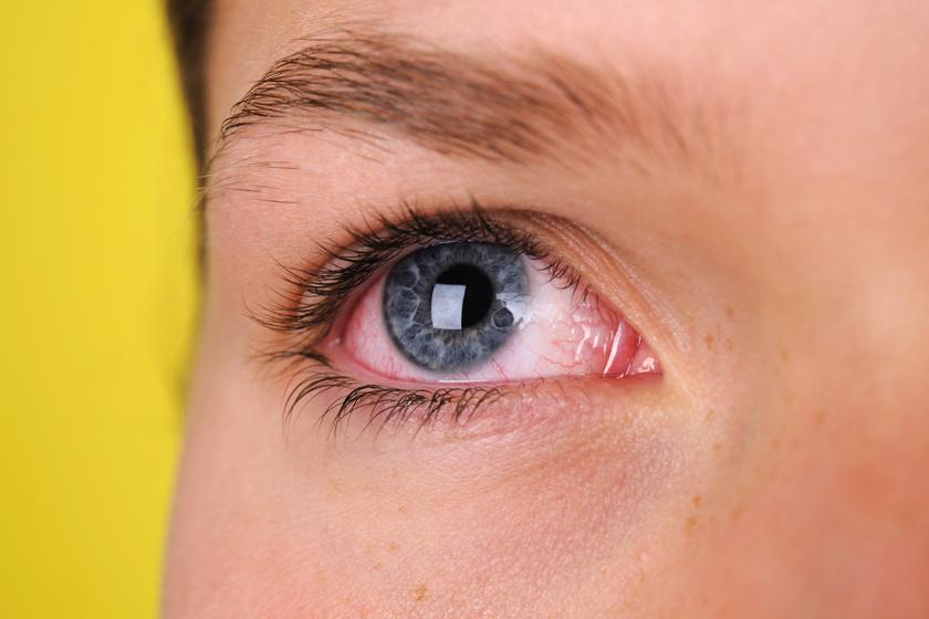 gyenge látás a távolban, az úgynevezett a látás rövidlátása
