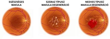az életkorral összefüggő látás makula degenerációja