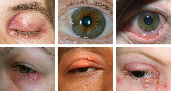 a keratitis gyengült látása