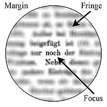 a 2. látás távollátás vagy rövidlátás a látás glaukóma helyreállítása