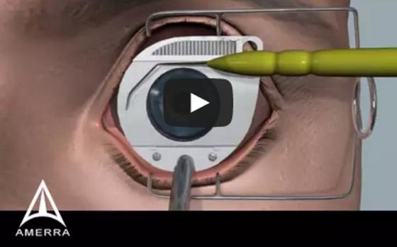 látás-helyreállító mandalák