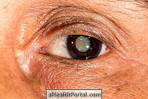 látás hiánya 7 betű aloe gyógyszer a látáshoz