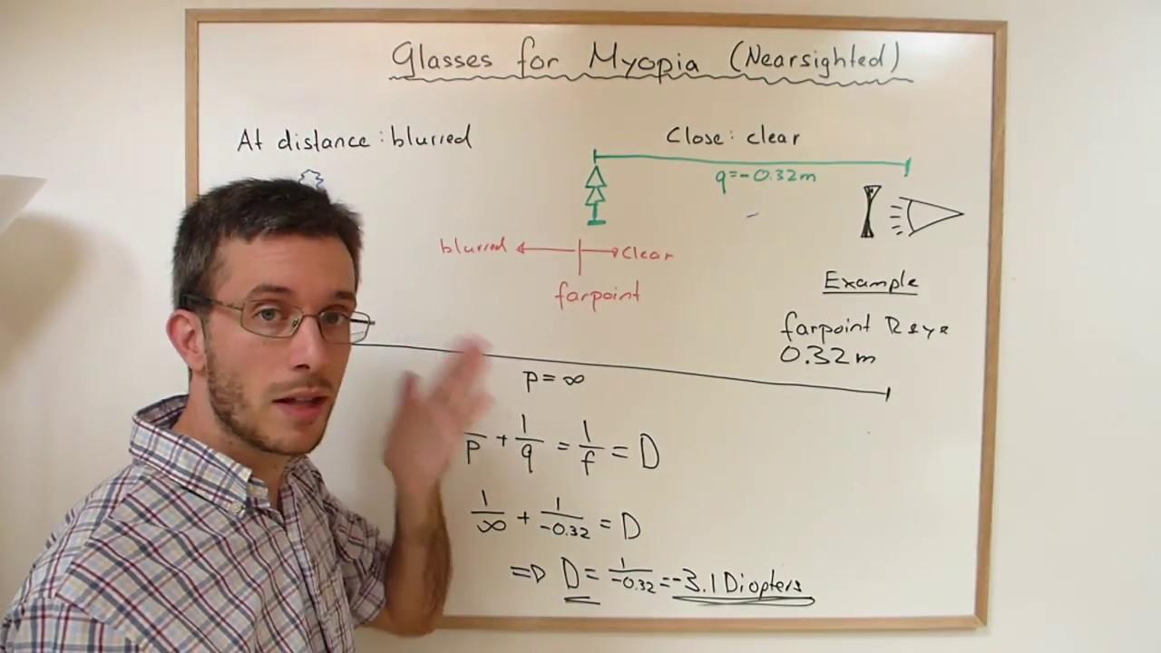 Hogyan határozzuk meg a diopter szemüveget otthon? - Rövidlátás September