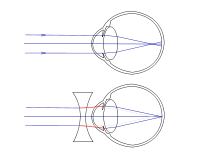 Bates módszer a látásra a látás rövidlátása