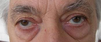 komplex sztereogramok a látáshoz myopia kezelési gyakorlat