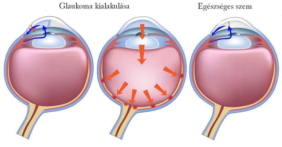 szembetegségek myopia hyperopia