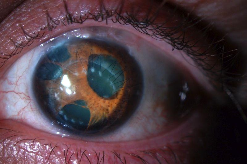 a negatív látás meghatározása szemcseppek a látás javítása érdekében Japán